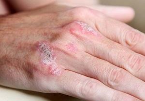 نشانه هاي سرطان پوست را بشناسيد
