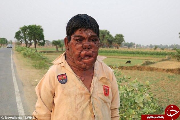 تومورهای وحشتناک پسر نوجوان هندی زیر تیغ جراحی قرار گرفت+تصاویر (18+)