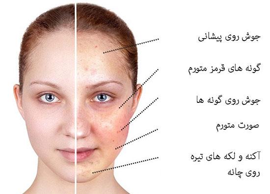 غذاهایی که پوست صورت را تغییر می دهند