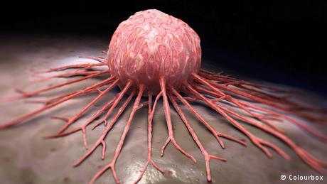 با علائم سرطان سینه بیشتر آشنا شویم