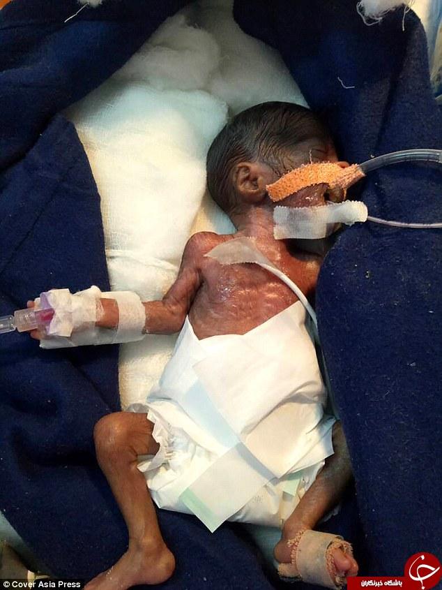 پیام صوتی تولد باشگاه خبرنگاران جوان - کوچکترین نوزاد جهان به اندازه کف ...