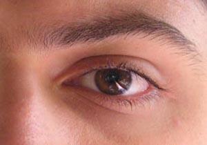 بیماری «میگرن چشمی» چیست؟