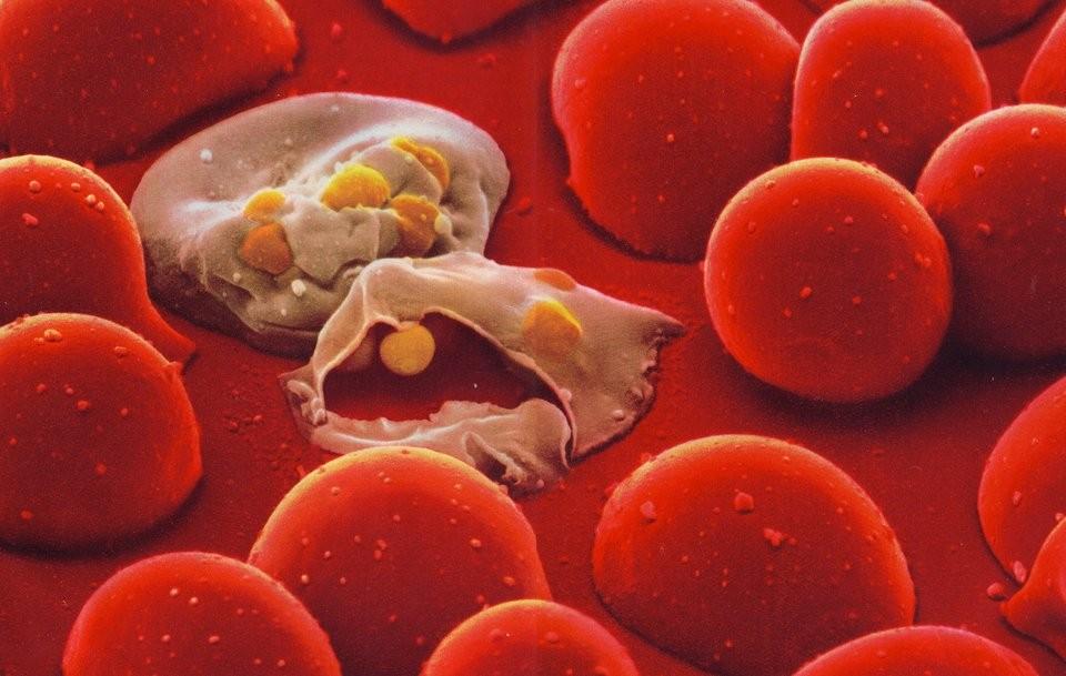 ضرورت درمان فوری عفونت خون