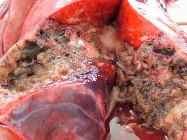 ریه افراد سیگاری زیر تیغ جراحی/دل رادیدن ندارید نبینید