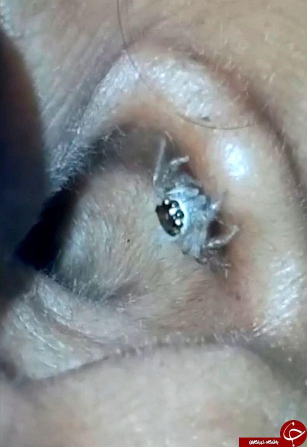 لحظه هولناک خارج کردم عنکبوت از گوش زن جوان+ فیلم