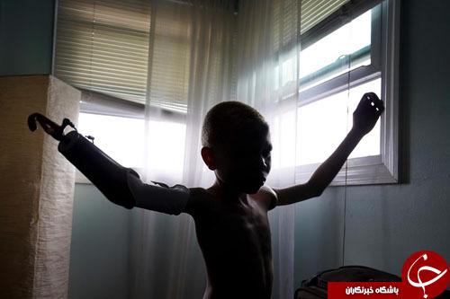 سرنوشت دردناک کودکان آلبینیسم در تانزانیا+ تصاویر