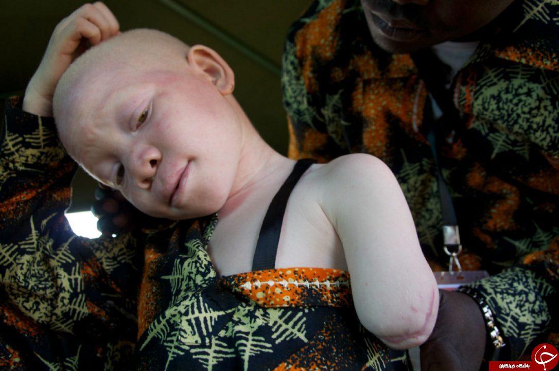 سرنوشت دردناک کودکان آلبینو در تانزانیا+ تصاویر