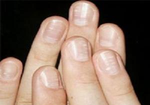 ناخن های دست ها، در مورد سلامت شما چه می گویند؟
