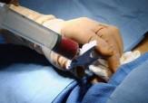 باشگاه خبرنگاران -استفاده از استخوان اجساد در جراحی کودکان تهرانی