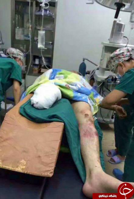 راننده فداکار قطار، حین نجات زن سالخورده ناشنوا پایش را از دست داد + تصاویر
