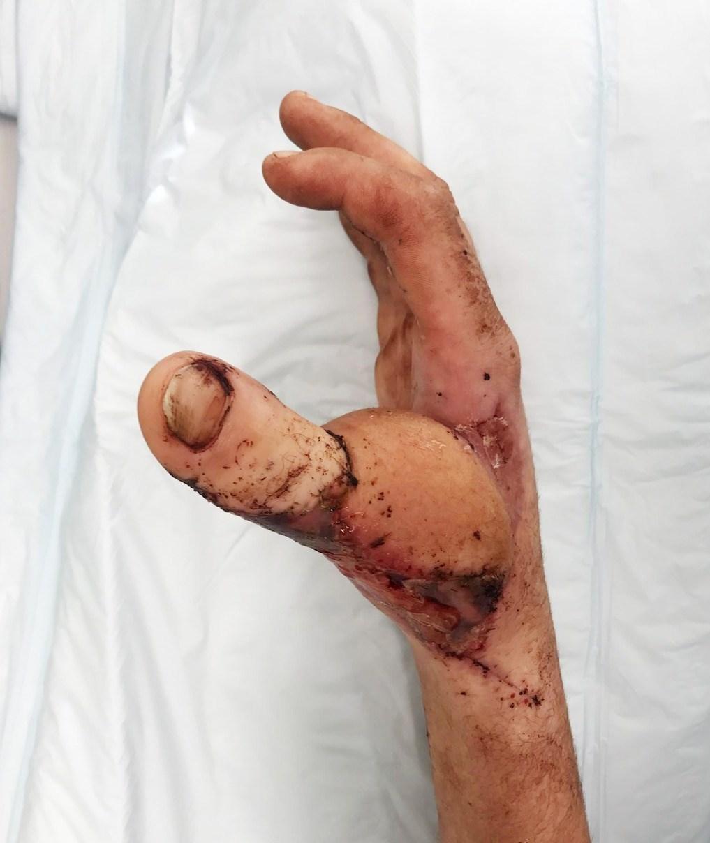 عمل جراحی عجیب پسر جوان!+عکس