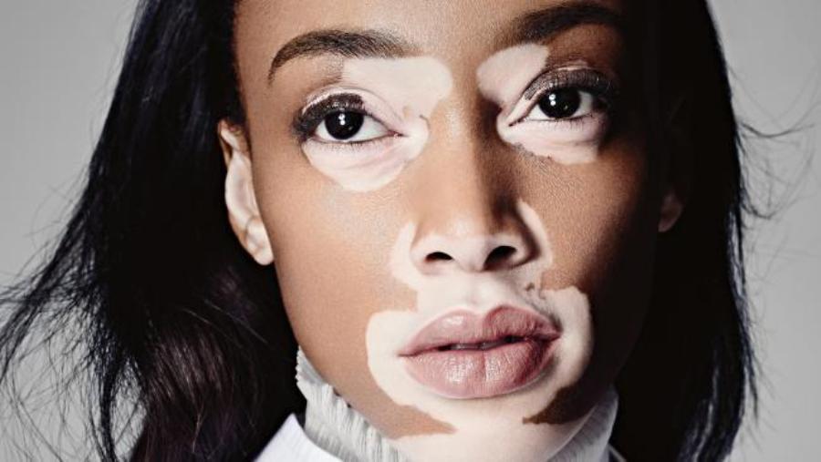 مشهورترین بیماریهای پوستی+ تصاویر