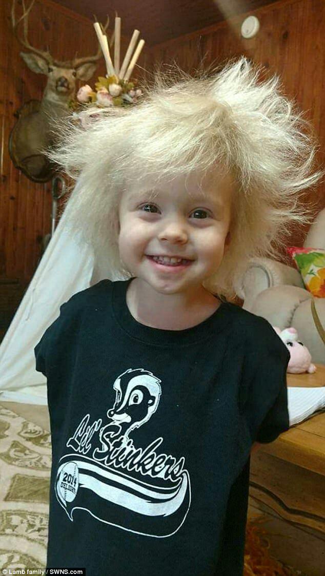 دختری با سندروم موهای آلبرت اینشتین+تصاویر