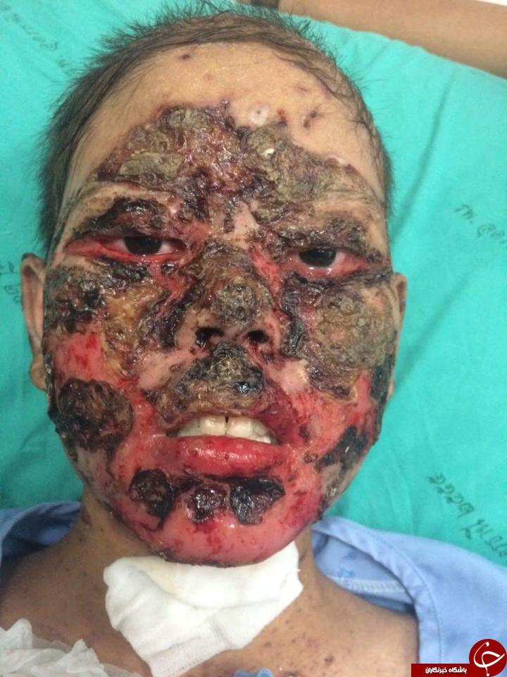 حساسیت دارویی دختری را به زامبی تبدیل کرد+تصاویر