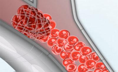 «آمبولی شریانی» در پاها شایعتر است/ تحرک، مهمترین گام برای پیشگیری از ابتلا به ترومبوز