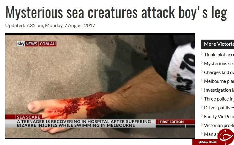 موجودات اسرارآمیز گوشت پاهای پسر نوجوان را خوردند+عکس