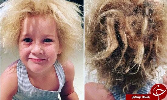 دختر ۷ ساله مبتلا به سندروم موهای شانه نشدنی
