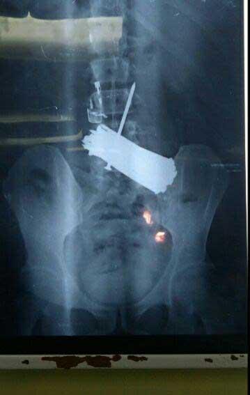 میخ، فندک و قیچی در معده بیمار! +عکس