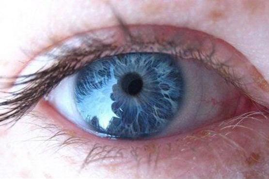 علت آبی شدن رنگ چشم چیست؟