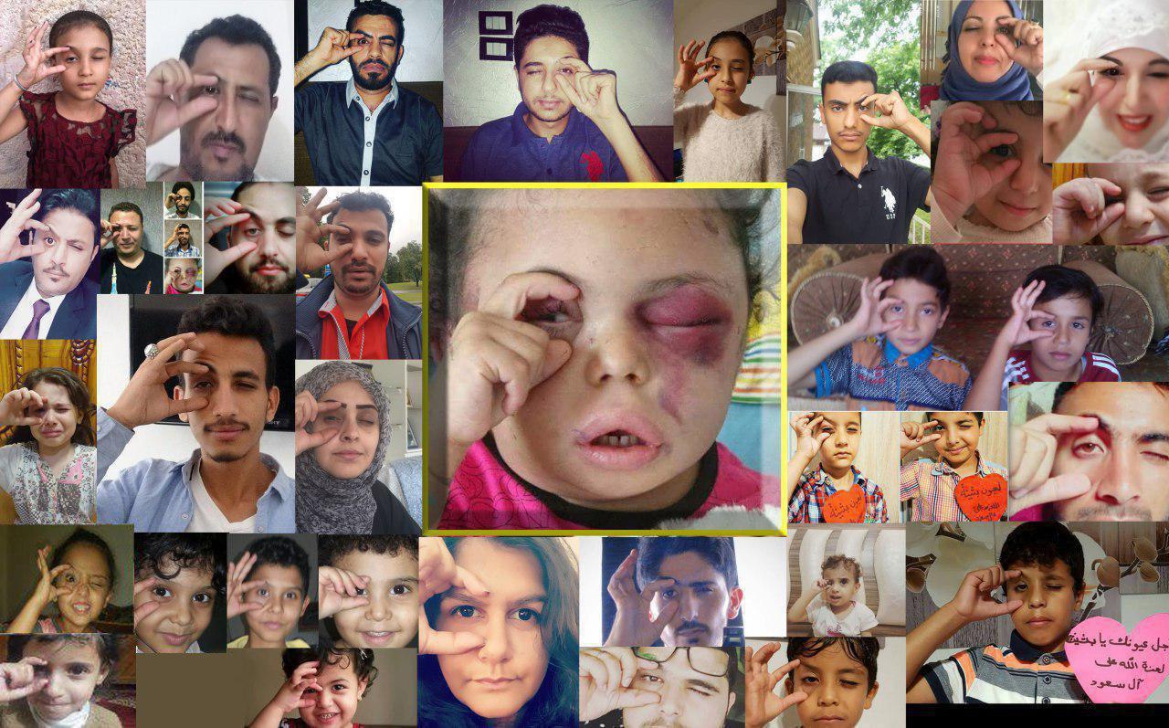 تصویری تکاندهنده از کودک یمنی که جامعه جهانی را از خواب غفلت بیدار کرد