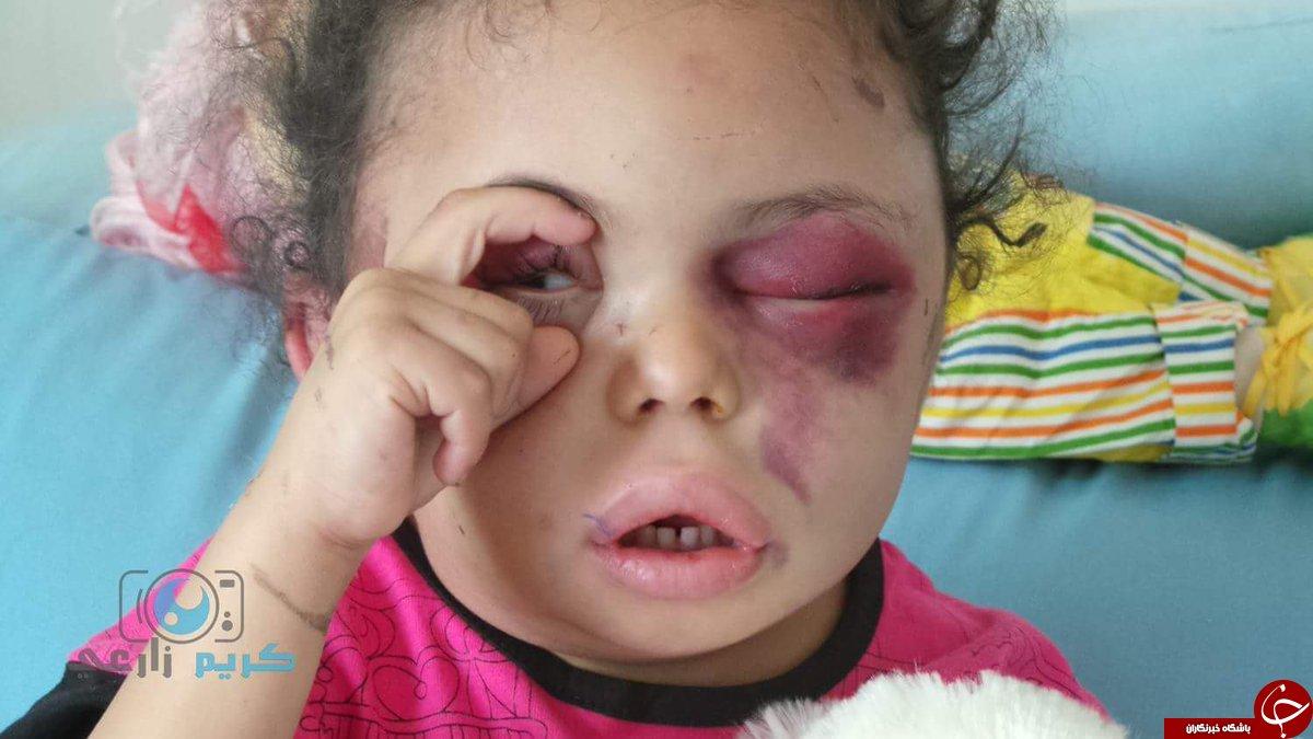 سرنوشت غمبار کودک خردسال یمنی/کاربران توییتر جنایت عربستان علیه بثینه را جهانی کردند +تصاویر