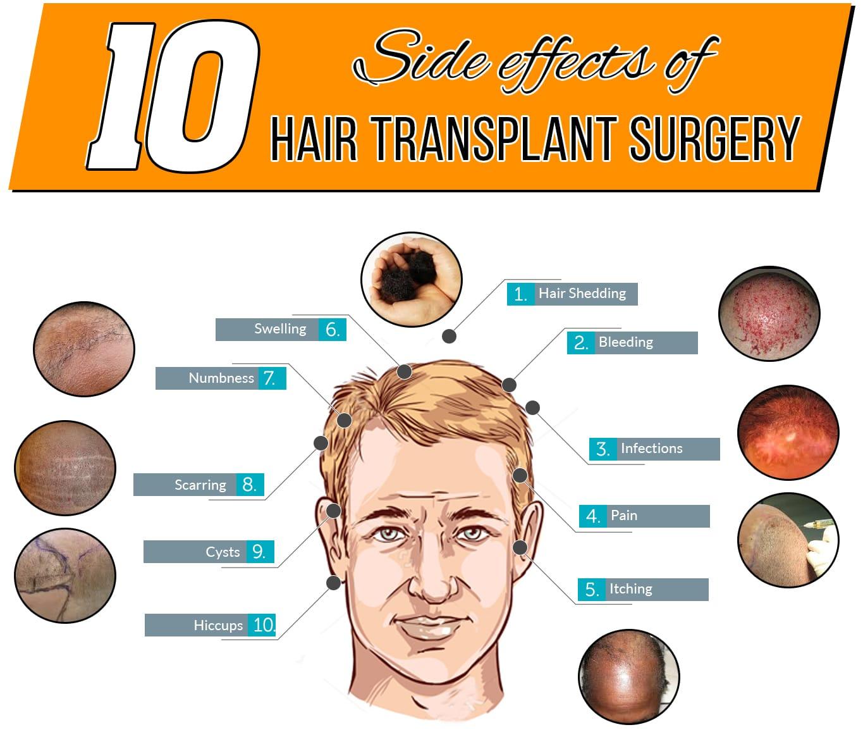 کاشت مو / ناگفتههایی درباره روشهای کاشت مو