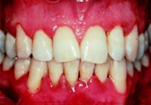 سرطان دهان ارمغان تلخ سهل انگاری در درمان التهاب لثه/ التهاب لثه را نادیده نگیرید