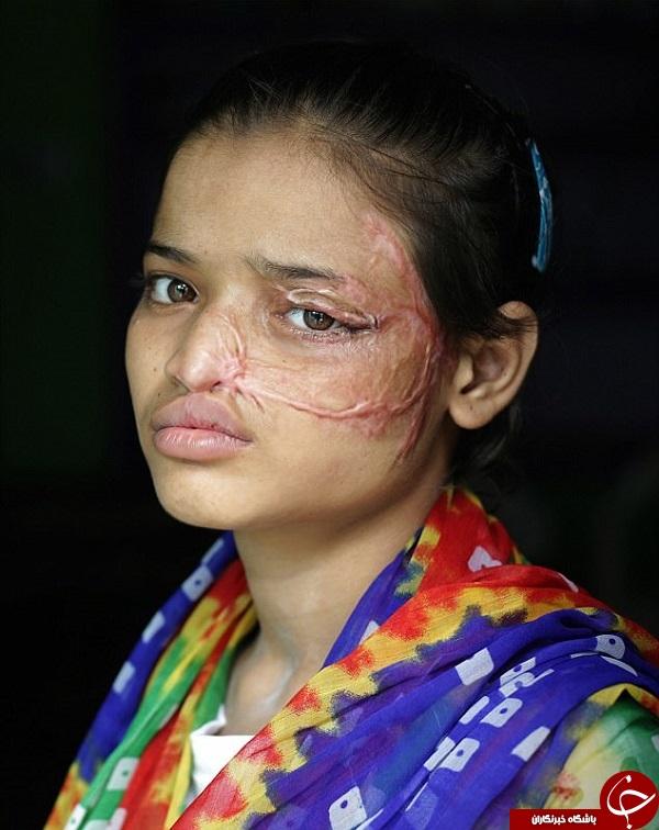 پدر بیرحم روی صورت دخترش اسید پاشید