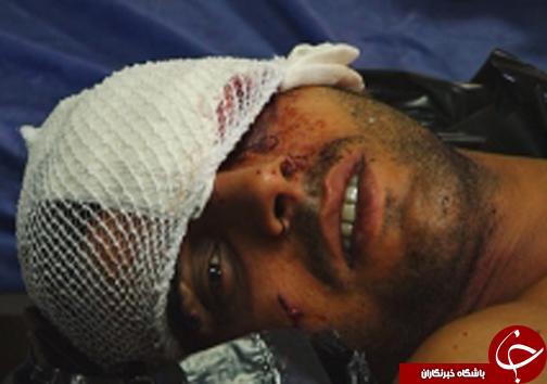 حمله پلنگ به جوان گلستانی + تصاویر