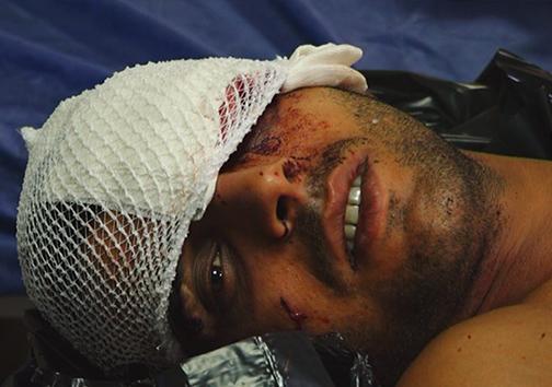 مهمترین حوادث و اخبار روز شنبه ۲۵ شهریور ماه در گلستان