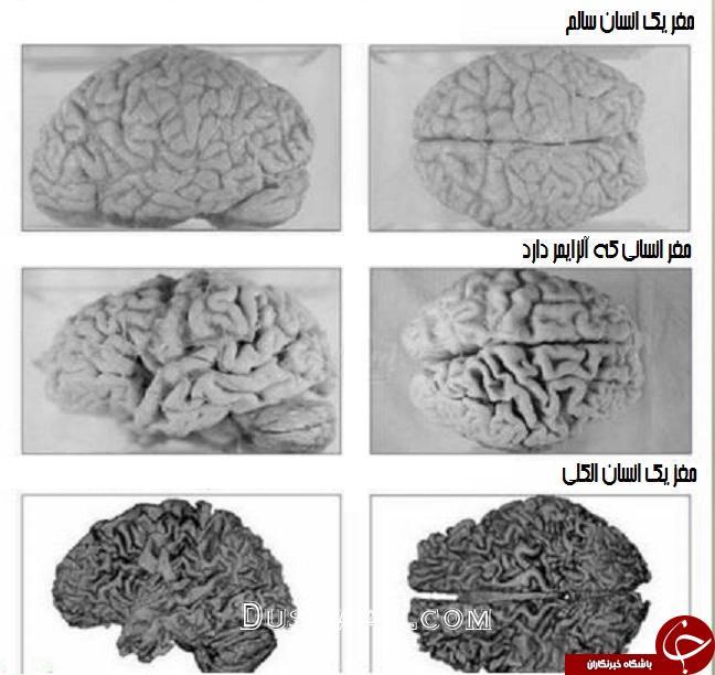 مقایسه مغز انسان عادی با یک انسان الکلی +عکس