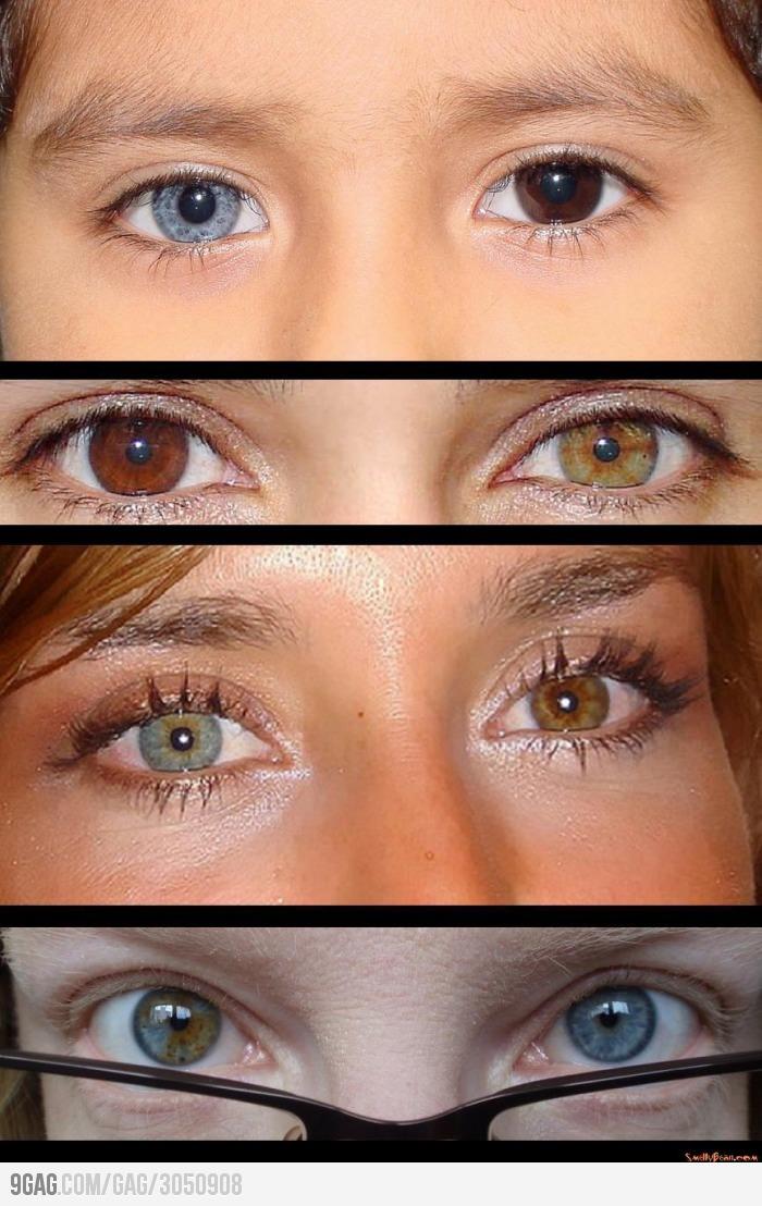 1-بيماري هتروکرومي يا وجود رنگ متفاوت درهر چشم2-چرا برخي از افراد داراي دو رنگ متفاوت در چشمان خود هستند