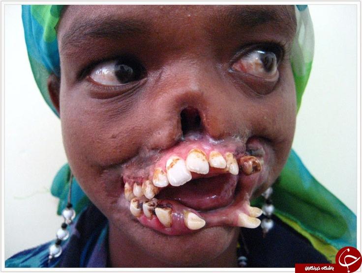 بیماری که از ایدز کشنده تر است + تصاویر