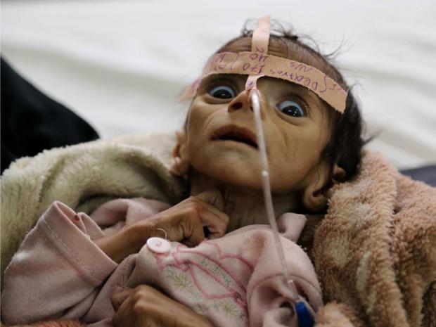 الجزیره: یمنیها برای نجات فرزندانشان از گرسنگی به فروش اعضای بدن خود روی آوردهاند