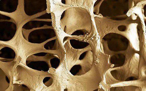 ۴ علائم هشدار دهنده که شما را از پوکی استخوان با خبر میکند!