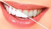باشگاه خبرنگاران -خوراکی هایی که باعث زرد شدن دندانهایتان میشوند+ اینفوگرافی