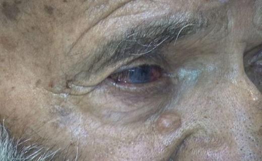 مشکلات چشمی ، حاصل طوفان های شن