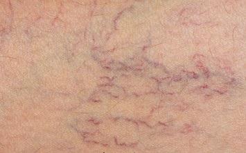 7 علت عجیب و غریب که به بیماری واریس ختم می شود