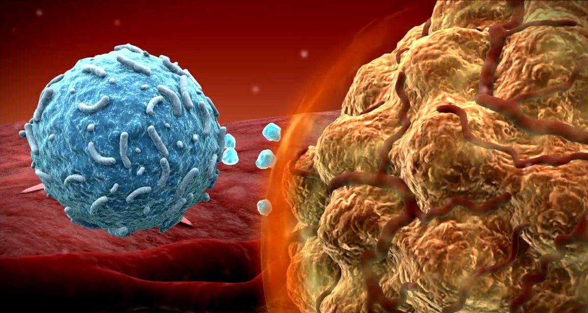 نشانه هاي سرطان را بشناسيد / علائم سرطان