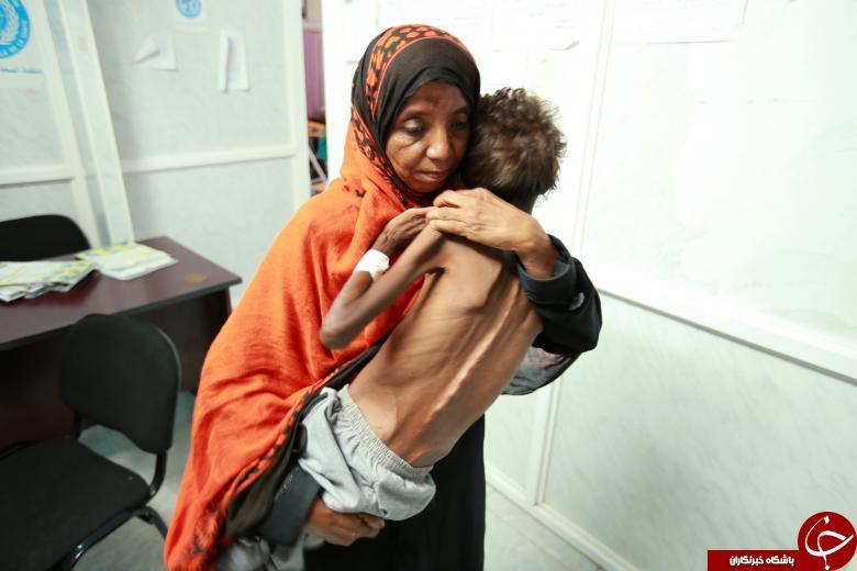 تصاویر دردناکی از سوءتغذیه کودکان یمنی در اثر جنگ