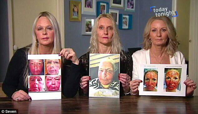 1-لیزر زیبایی چهره این زنان را نابود کرد+ تصاویر2-سوختگی درجه سه؛ نتیجه استفاده از لیزر زیبایی دراین زنان