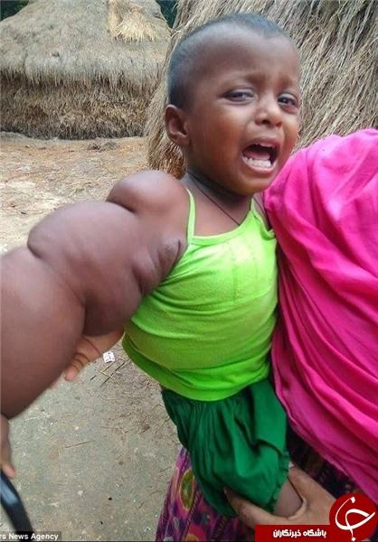 بیماری عجیب و نادر کودک ۲ ساله