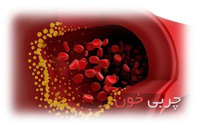 هشدار به افراد بالای ۲۰ سال: چربی خون خود را کنترل کنید