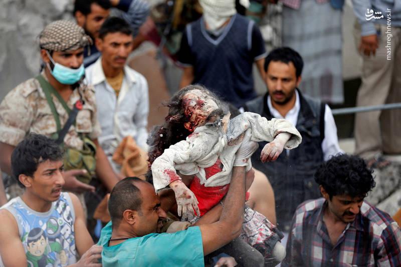 عکس/ نجات معجزه آسای دختر یمنی (13+)