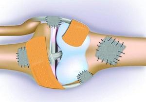 شیوع 20 درصدی پوکی استخوان در بین مردم/ غنیسازی لبنیات با ویتامین D در راستای کاهش پوکی استخوان