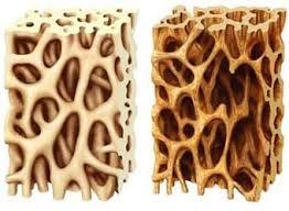 معجونی برای جلوگیری از ابتلا به «پوکی استخوان»