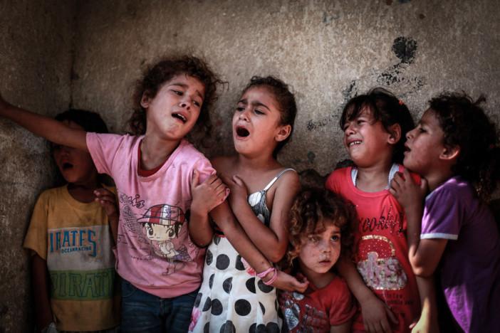 برگی دیگر از جنابات آل سعود / فیلم تکان دهنده از دختربچه ای یمنی که دستش قطع شده است