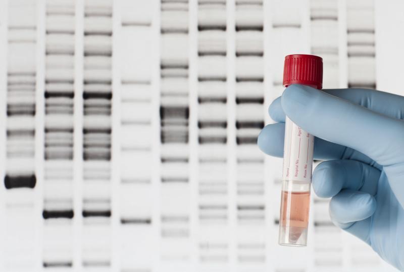 باشگاه خبرنگاران -شناسایی به موقع این سرطان با آزمایش ژنتیک