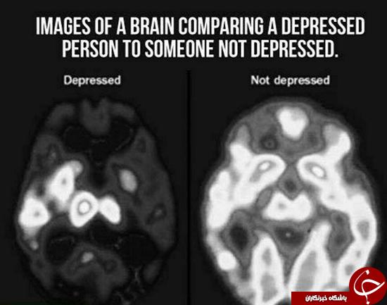 مغز در حالت افسردگی! +عکس