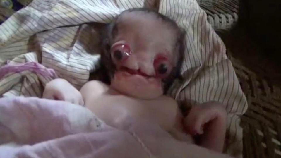 تولد نوزاد عجیب الخلقه شبیه به موجودات فضایی در هند